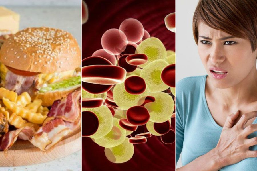 Lo que usted tiene saber sobre el colesterol